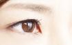 まぶたの手術・眼瞼下垂